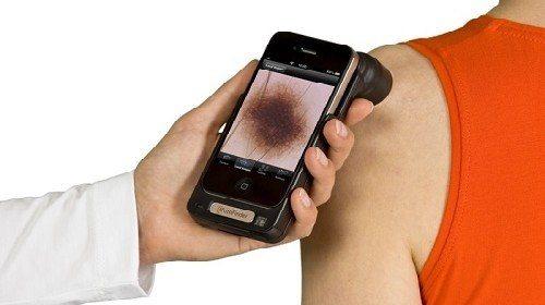 La inteligencia artificial ya puede detectar el cáncer de la piel mejor que los médicos